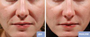 гиалуроновая кислота носогубные складки