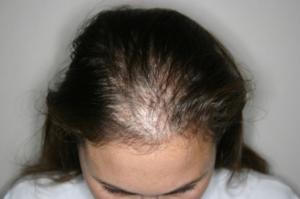 очень сильно выпадают волосы что делать помогите