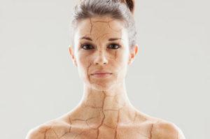 сухая кожа тела