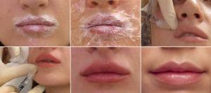 губы после гиалуронки