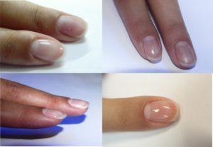 для укрепления ногтей