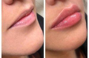 увеличение губ киев