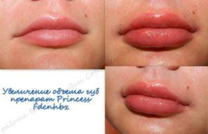 увеличение губ спб