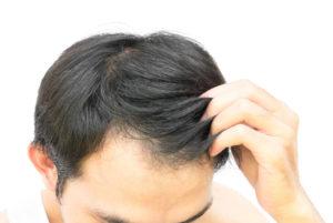 из за чего выпадают волосы у мужчин