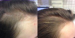 как вернуть волосы после выпадения