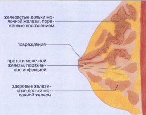 уплотнения в грудях при кормлении