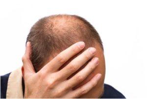 выпадение волос у мужчин в 20 лет